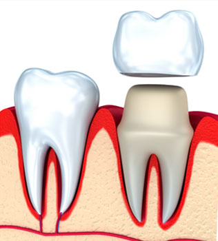 Dental Crowns in Glen Burnie, MD