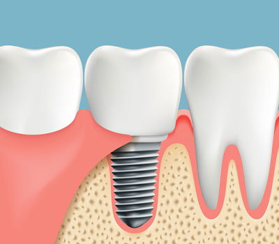 Dental Implants Glen Burnie, MD