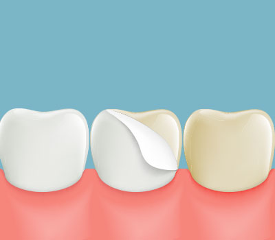 Dental Veneers in Glen Burnie, MD