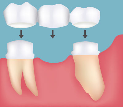 Dental Bridges in Glen Burnie